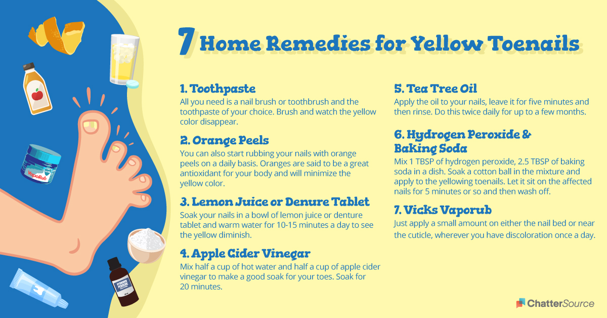 How To Get Rid Of Yellow Toenails infographic