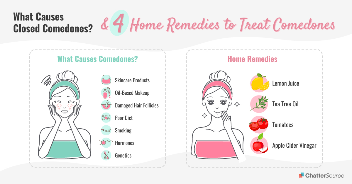 How to treat closed comedones infographic