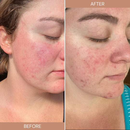 Close up of woman's face in a before and after photo