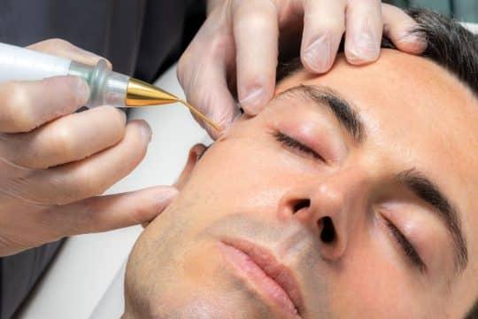 Man getting a plasma pen procedure on his cheek